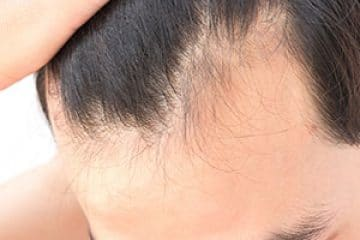 פאות רפואיות (יחידת שיער)
